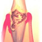 Illustative Perio lesion