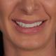 Smile Test Drive